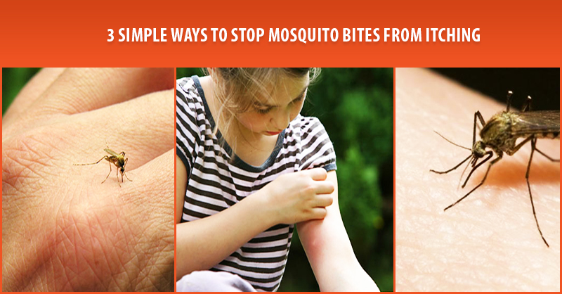 3 Simple Ways To Stop Mosquito Bites From Itching
