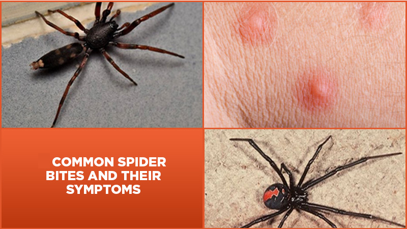 2 Common Spider Bites And Their Symptoms